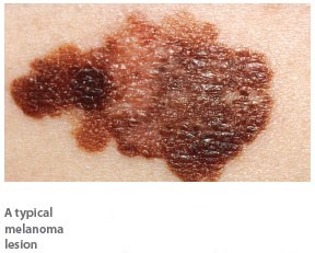 Melanoma associated with indoor tanning