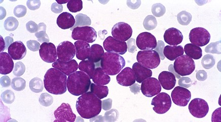 Total XV protocol significantly improves survival in older adolescents with leukemia