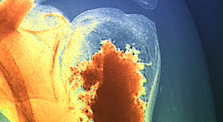 Guidelines reflect changes in radiotherapy for bone metastases