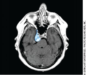 new approach improves skull base tumor surgery ona