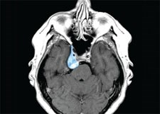 New approach improves skull-base tumor surgery