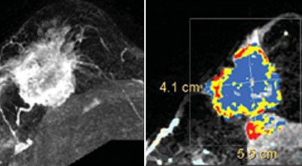 Imaging software could improve breast cancer diagnosis process