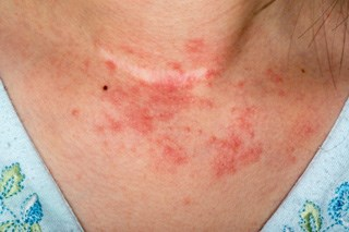 Treating chemotherapy-associated rash