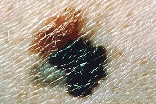 Melanoma switches phenotypes to become metastatic and drug-resistant