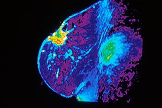 Breast cancer related to changes in breast density as women age