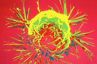 Helical APBI Delivers Targeted Dose of Adjuvant Radiation Treatment for Breast Cancer