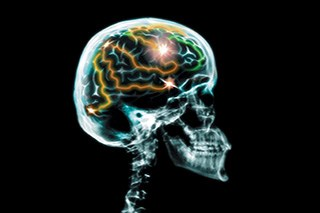Caregiver Mastery Linked to Patient Survival in Glioblastoma