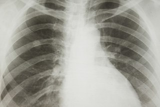 Only 20% of lung cancer cases caught by x-rays