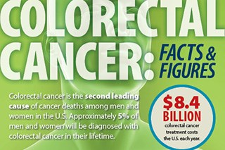 Colorectal Cancer: Facts and Figures (Infographic)