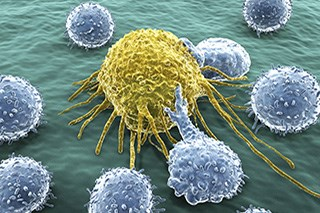 Prostate Cancer Response to Immunotherapy Improved With Combination Therapy