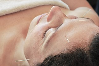 Acupuncture Improves Postoperative Symptoms in Women Undergoing Surgery for Breast Cancer