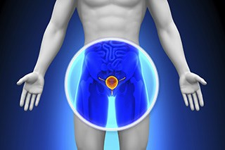 Chemotherapy may be the preferred option for some patients with advanced prostate cancer