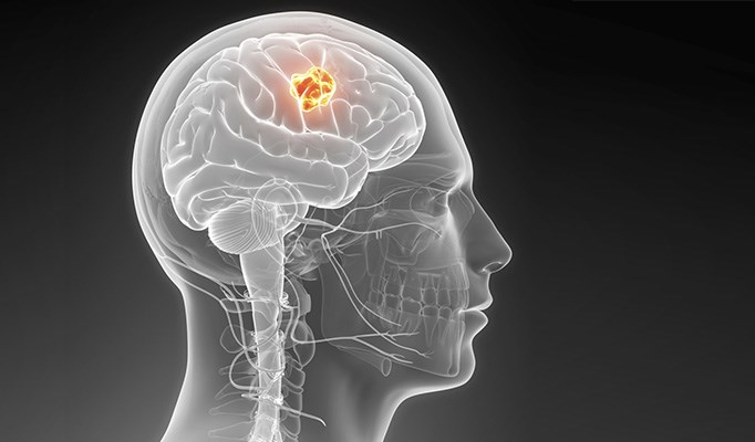Wireless phone may increase risk of gliomas