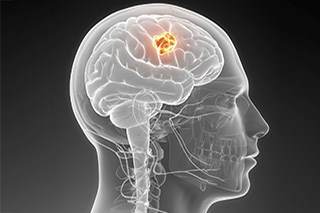 A possible explanation for why brain tumors are more common, and more harmful, in males