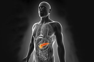 An episode of sudden-onset jaundice signaled pancreatic cancer in a healthy man
