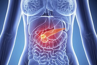 Cisplatin Plus Standard-of-Care Regimen Reduced Tumors in Advanced Pancreatic Cancer