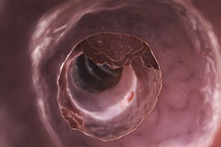 Colorectal cancer incidence is increasing among young adults