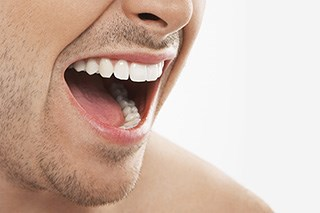 Managing oral side effects of irinotecan therapy