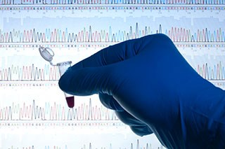 Imprecise information on significance of gene variants diminishes value of genetic panel testing