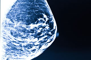 New Device Improves Breast Imaging With Less Radiation Exposure