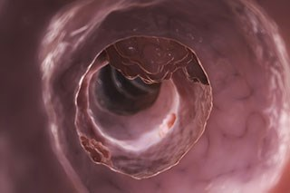 Colonoscopy screening may reduce CRC-related mortality