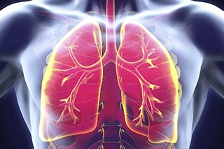HIIT Improves Cardiorespiratory Fitness in Patients With Resectable NSCLC