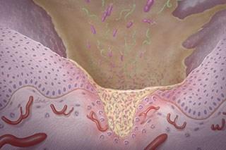 Managing capecitabine-associated mucositis