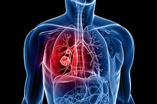 Fungal infection drug for lung transplant recipients may increase cancer, death risk