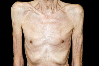 Breakthrough Supportive Care Overcoming Cancer Anorexia