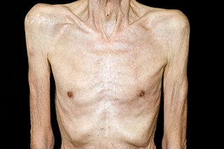 Breakthrough supportive care: Overcoming cancer anorexia/cachexia