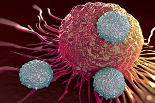 Chimeric antigen receptor T cells are T cells that have been collected and genetically modified to express a CAR immunoreceptor.