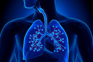 Lung Cancer Risk Higher in Heavy Smokers With Pneumonia