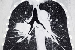Clinician Communication May Reduce Distress Associated With Detection of Pulmonary Nodules