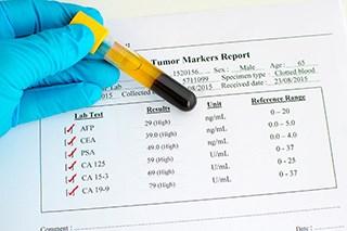 Prostate-Specific Antigen (PSA) Test (Fact Sheet)