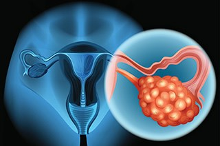 Patients with ovarian cancer maintained QOL when niraparib was administered following their platinum-based chemotherapy.