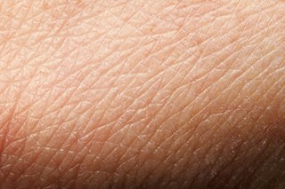 Silicone dressing prevents skin reactions during radiation