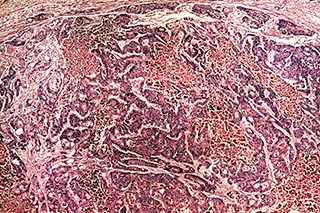 Adding Doxorubicin to Sorafenib Does Not Improve Overall Survival in Hepatocellular Carcinoma