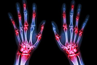 Case Reports Show an Association Between Immune Checkpoint Inhibitors and Risk for Rheumatologic Disorders