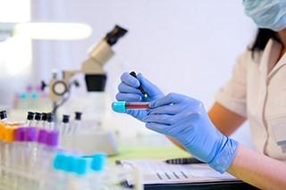 Pseudohyperkalemia: False Potassium Levels Occur in a Patient With Lymphoma