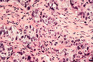 Invasive ductal carcinoma of the breast.