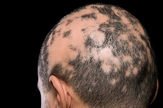Alopecia is a common side effect of cancer treatment.
