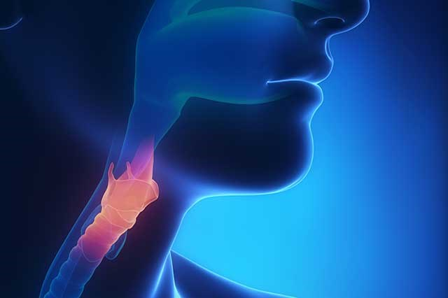ASTRO Guideline Addresses Curative Treatment of Oropharyngeal Cancer
