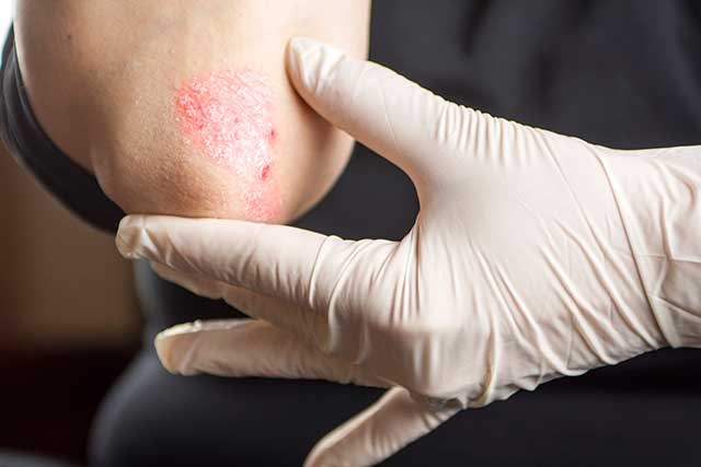 Psoriasis May Increase Risk of Melanoma and Hematologic Cancers