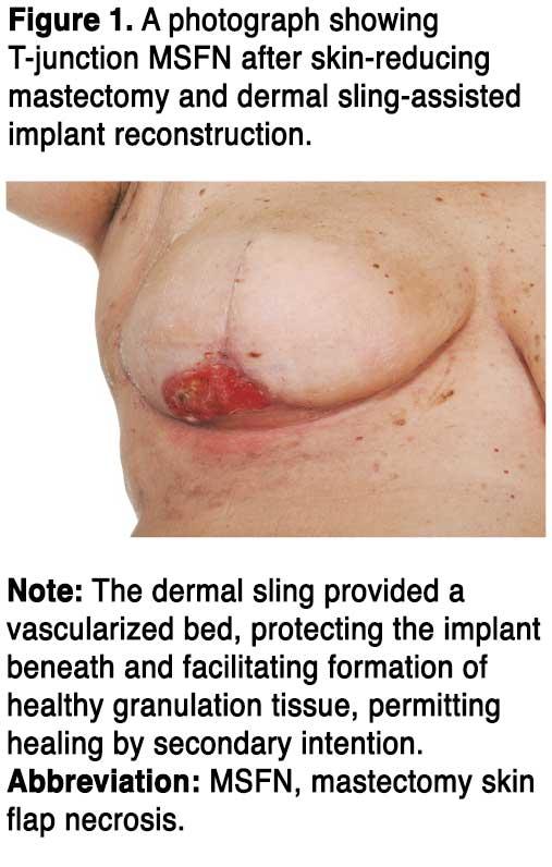 necrosis breast