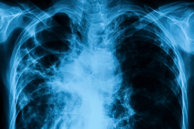 Early Recognition of Checkpoint Inhibitor-Related Pneumonitis Improves Outcomes