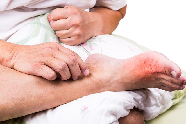 Gout is a common symptom of PV.
