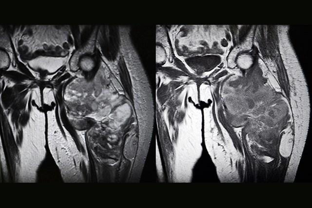 Progression-Free, Overall Survival in Liposarcoma Improved With Eribulin vs Dacarbazine