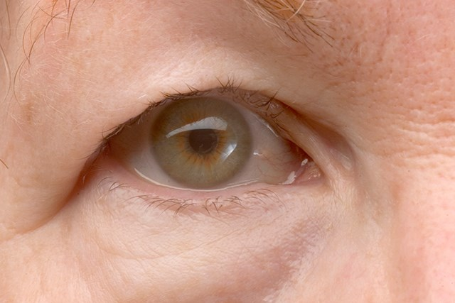 Drooping eyelids are one symptom of myasthenia gravis.
