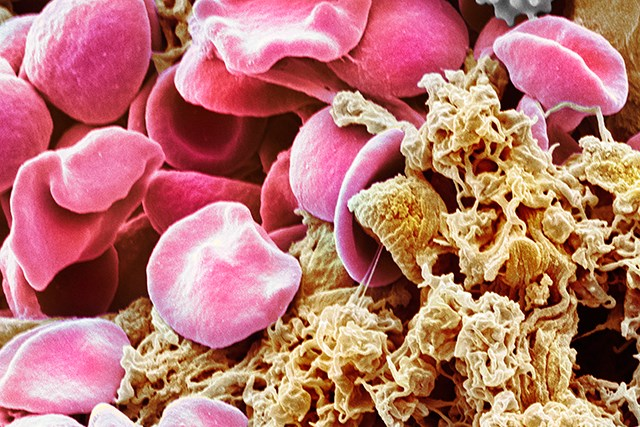 Essential thrombocythemia (ET) is a blood disorder in which the body produces too many blood platelets.