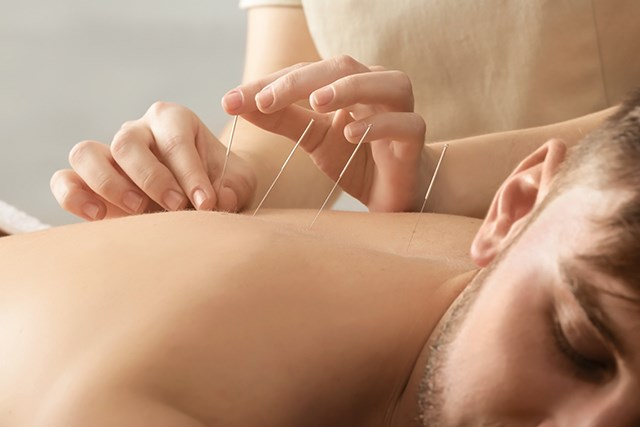 A study meta-analysis indicated that acupuncture can be an effective means of managing CRF.
